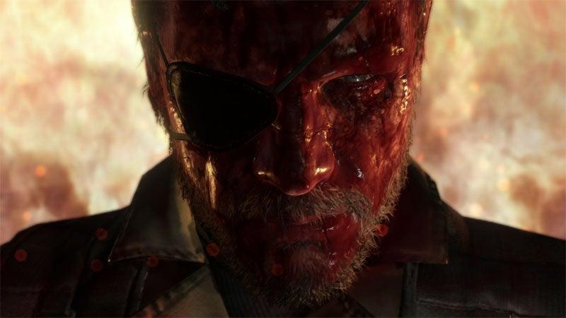Image for Who needs stealth? MGS5: The Phantom Pain opens up Kojima's sandbox
